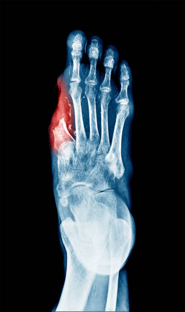X-ray image of Diabetic wound ulcer show Big Toe amputation caused by wound infected. stock photo
