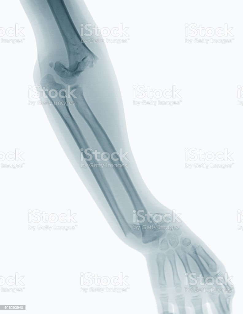 Xray Image Of Elbow Includำ Wrist Joint Fron View Stock Photo & More ...