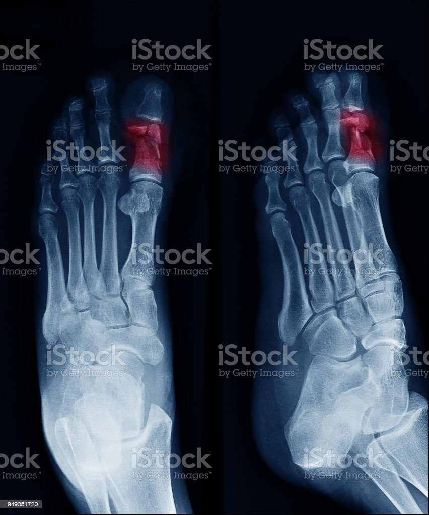 Xray Image Of Foot Can See Fracture At Big Toe At Red Area Mark ...