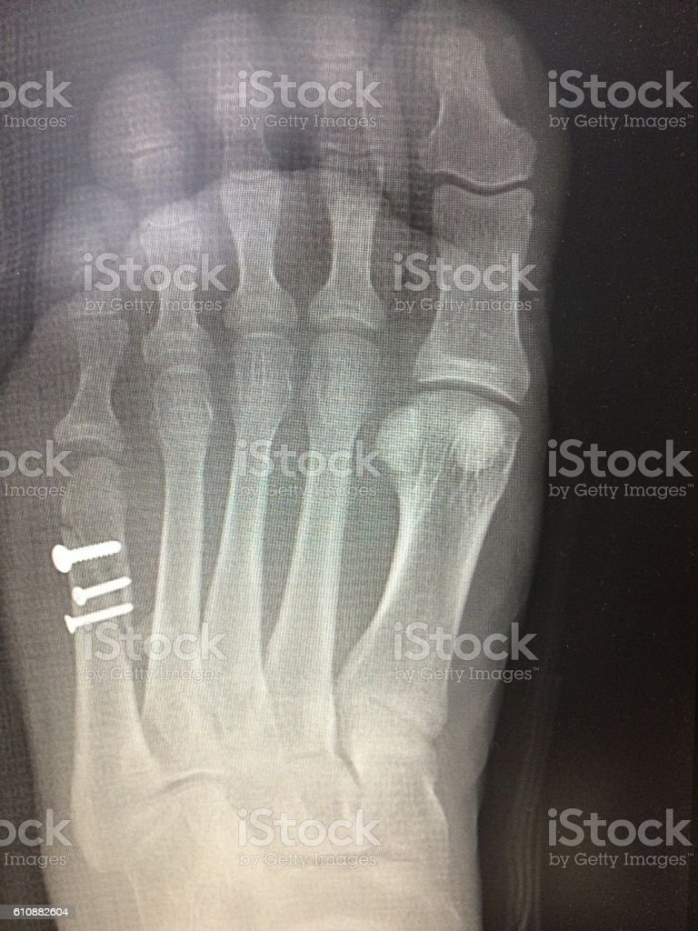 X-ray image of foot fracture with Fixation, AP view stock photo