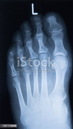xray image of foot view isolated on black background for diagnostic rheumatoid.