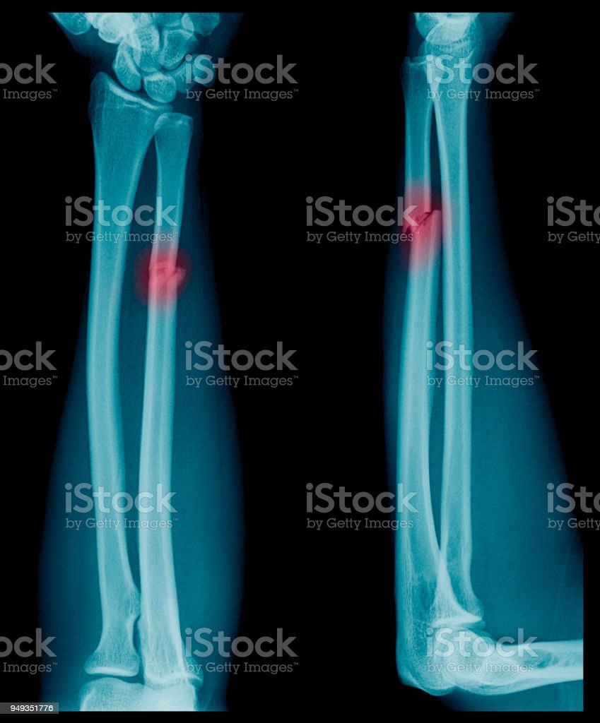 Xray Image Of Forearm Bone Fracture In Childs Stock Photo More