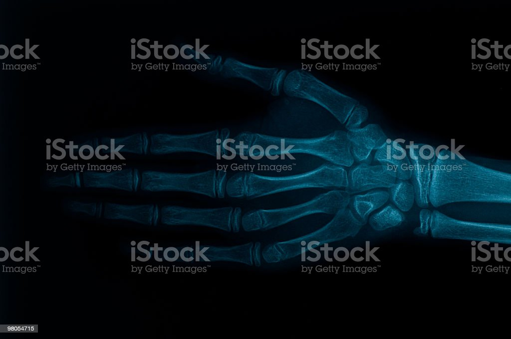 X-ray image of hand royalty-free stock photo