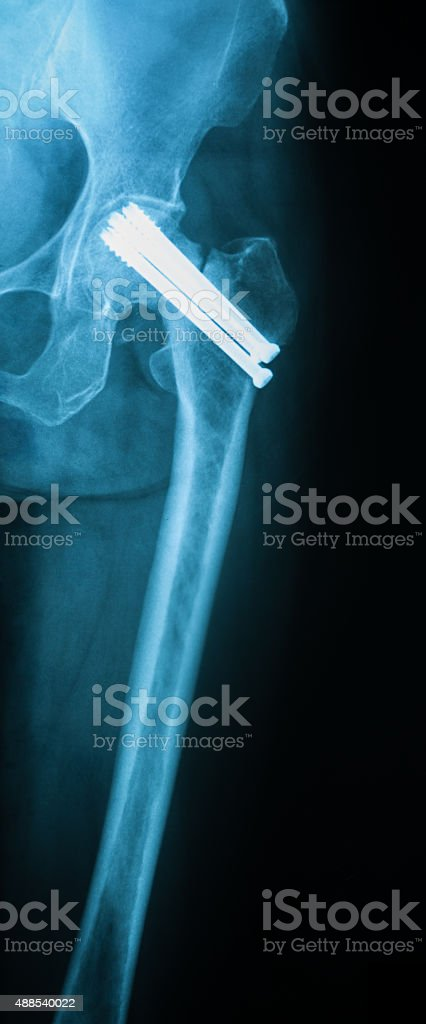 X-ray image of hip joint antero posterior view. stock photo