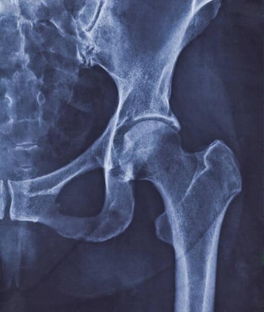 coxarthrosis의 표시를 가진 고관절의 엑스레이 심상 - 엉덩관절 뉴스 사진 이미지