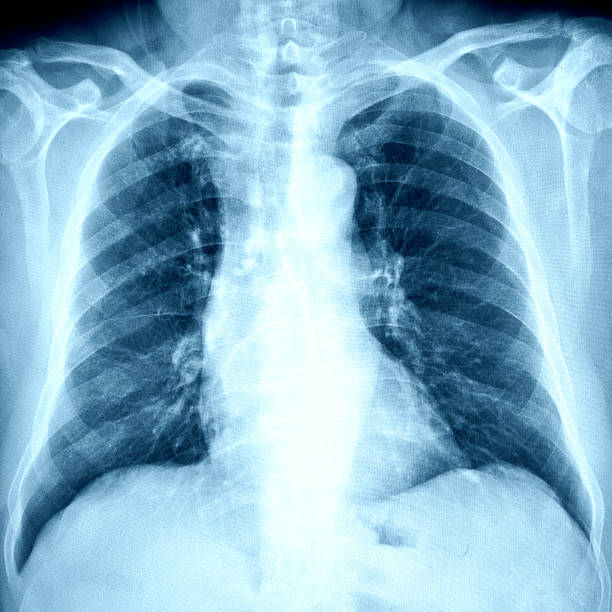 X-Ray Image Of Human Chest X-Ray Image Of Human Chest human rib cage stock pictures, royalty-free photos & images