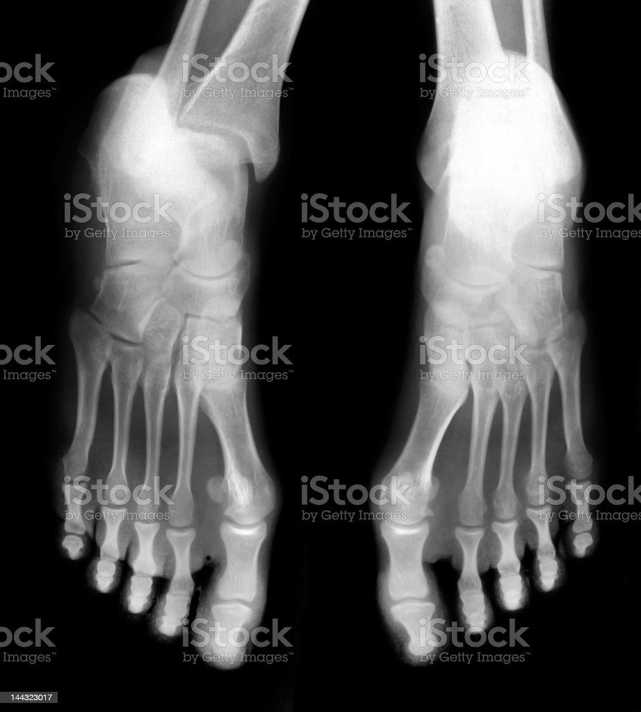 x-ray image of human Feet royalty-free stock photo