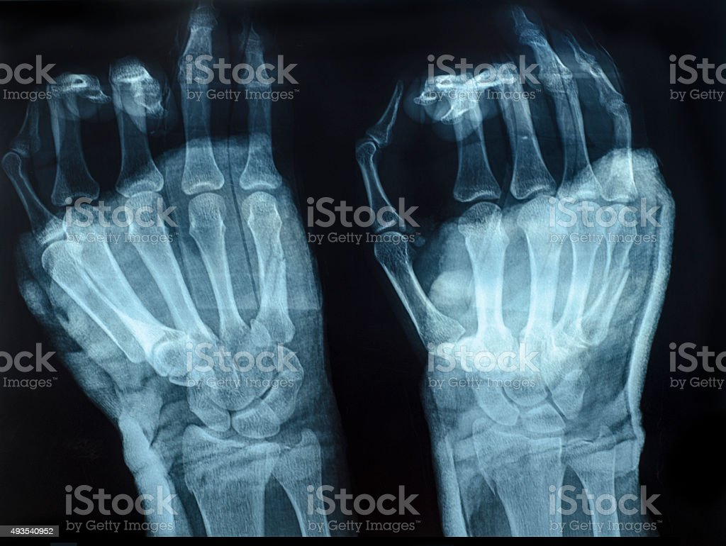 X-Ray image of human hands stock photo