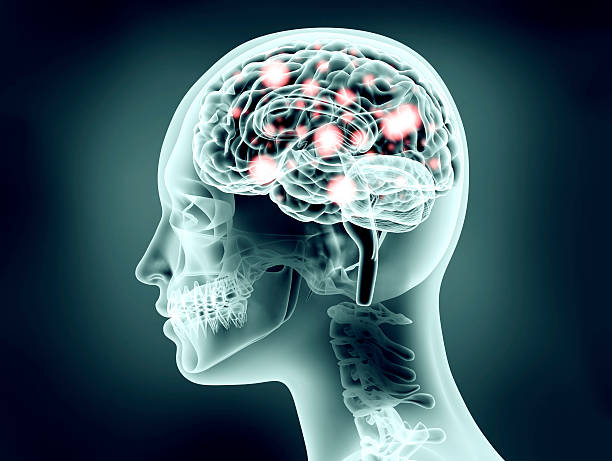 xray Bild von Menschlicher Kopf mit Gehirn und electric Hülsenfrüchte – Foto