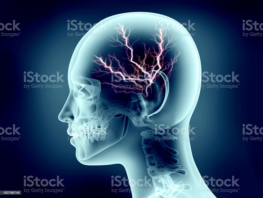 x-ray image of human head with lightning