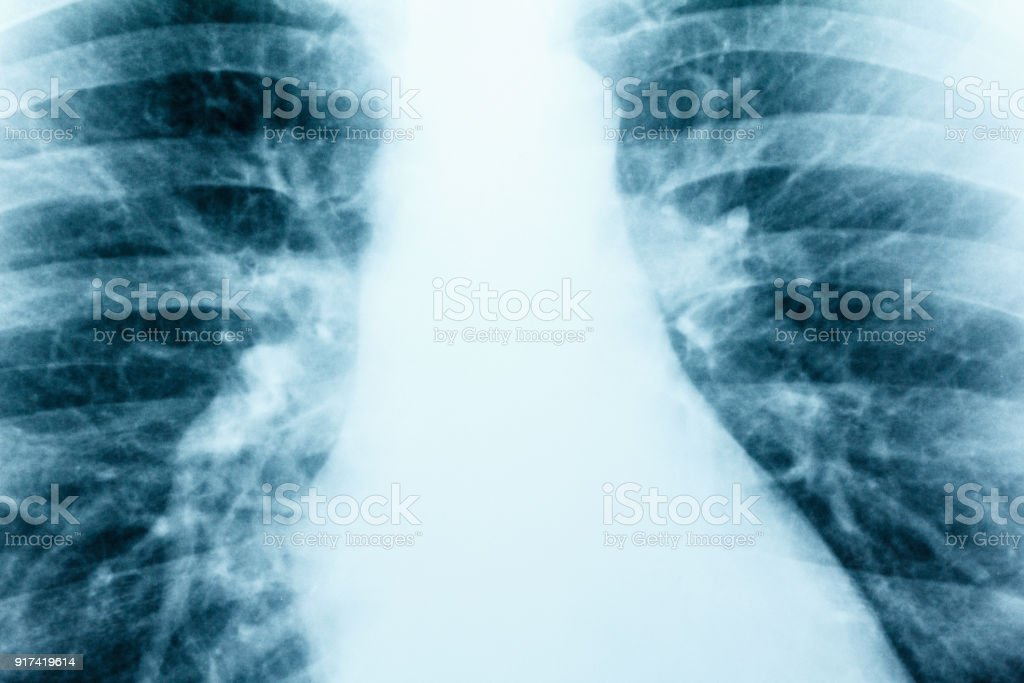 X-Ray Image Of Human Healthy Chest MRI close-up stock photo