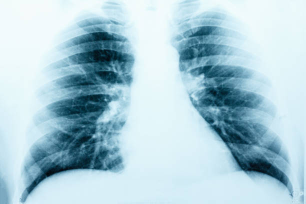 X-Ray Image Of Human Healthy Chest MRI stock photo