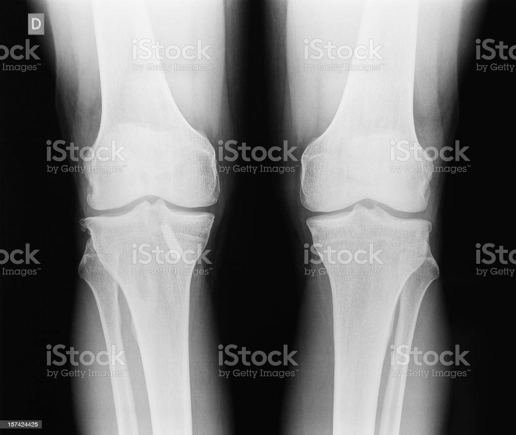 X-ray image of human knee royalty-free stock photo