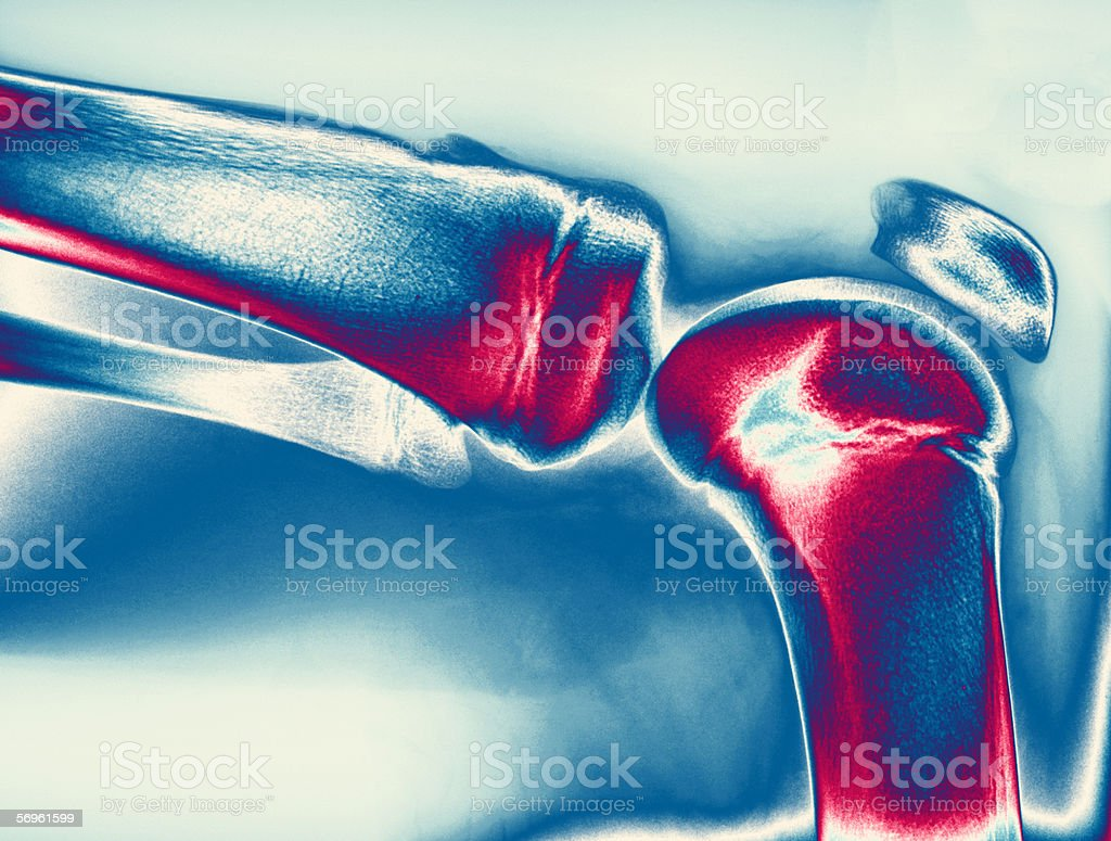 X-ray image of knee stock photo