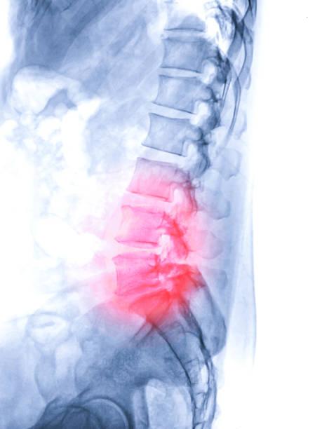 Röntgenbild der Wirbelsäule Lambosacral oder L-S Wirbelsäule Seitenansicht von Patienten niedrigere Rückenschmerzen Zeichen. – Foto