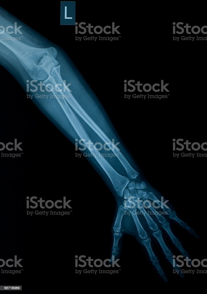 Xray Image Of Left Arm And Hand Stock Photo & More Pictures of ...