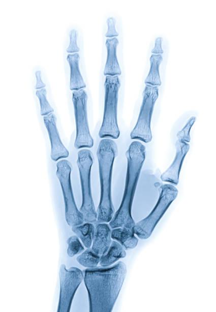 Röntgenbild der linken Hand isoliert auf weißem Hintergrund – Foto