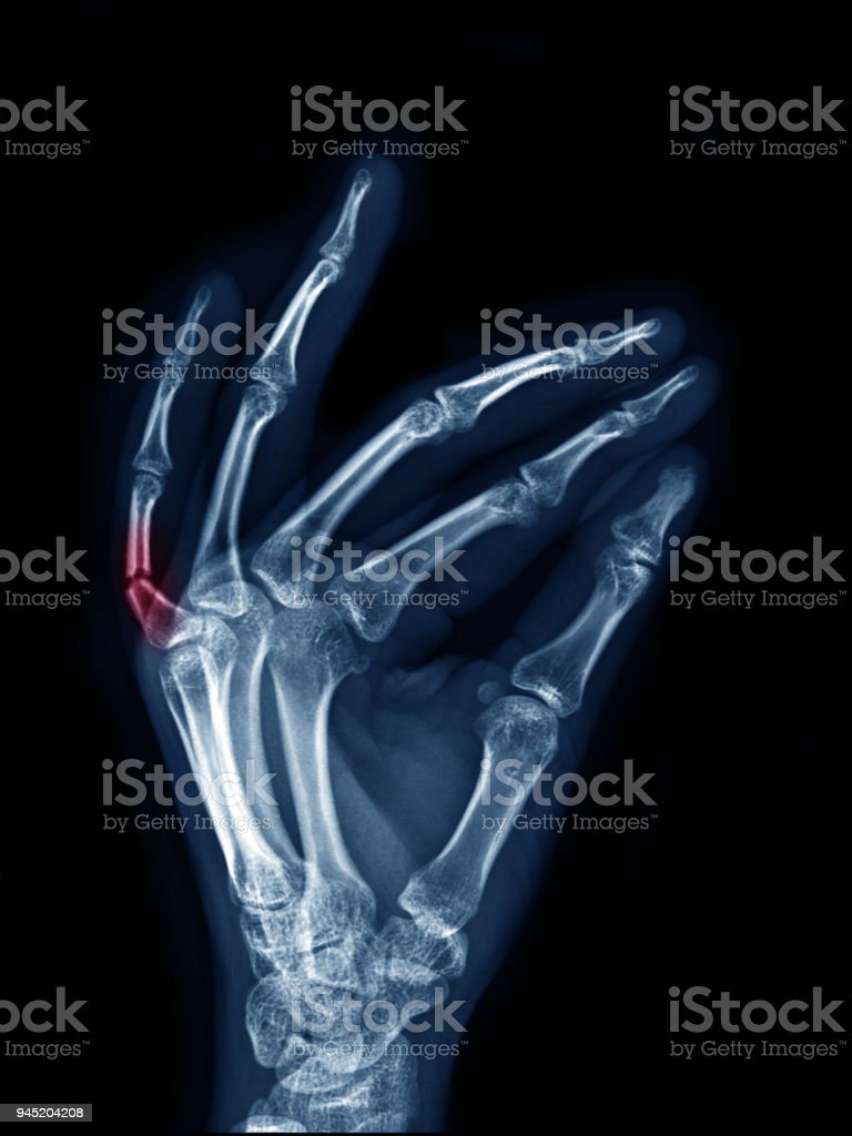 X-ray image of left hand show fracture at little finger oblique, side...