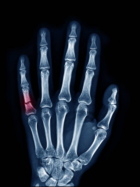 X-ray image of left hand show fracture at little finger upper view , area of broken with red color mark stock photo
