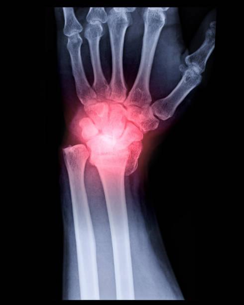 Röntgenbild des linken Handgelenkgelenks AP und Seitenansicht – Foto