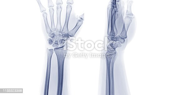 X-ray image of left wrist joint AP and Lateral view. rheumatoid arthritis concept.