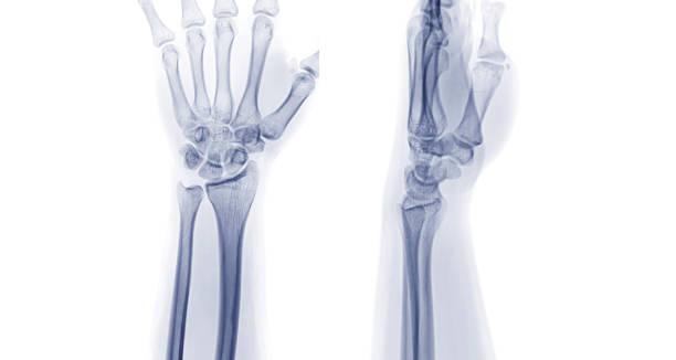Röntgenbild des linken Handgelenks Gelenk-AP und Lateralansicht. Rheumatoide Arthritis-Konzept. – Foto