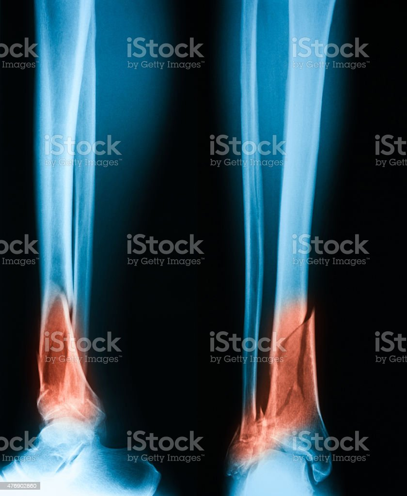 X-ray image of leg, AP and lateral view. stock photo