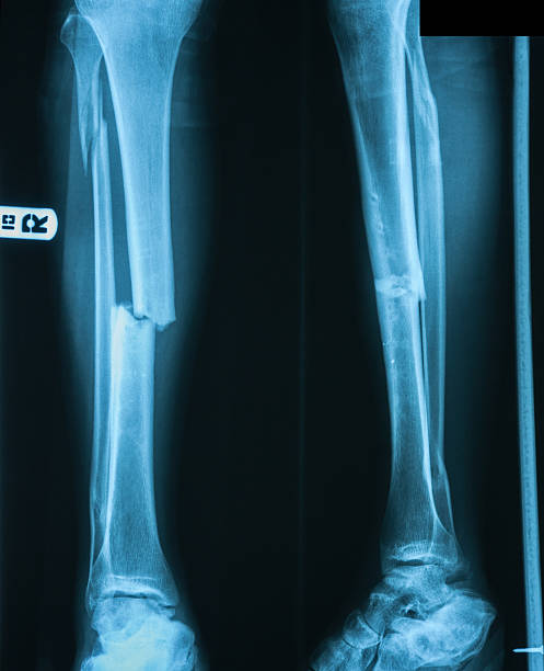 x-ray image of leg fracture with wooden splint. - broken leg stock photos and pictures
