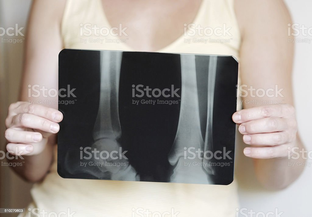 X-ray image of legs stock photo