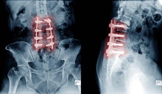 X-ray image of lumbar spine postoperative treatment for degenerative lumbar disc disease by decompression and fix by iron rod and screws stock photo