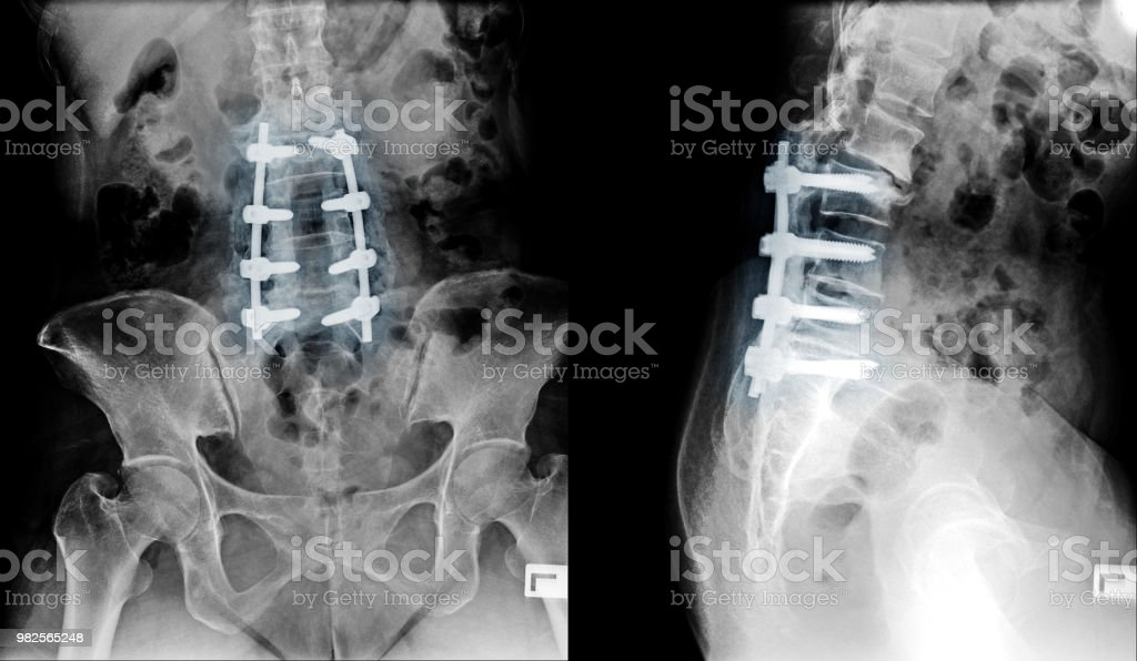 Xray Image Of Lumbar Spine Postoperative Treatment For Degenerative