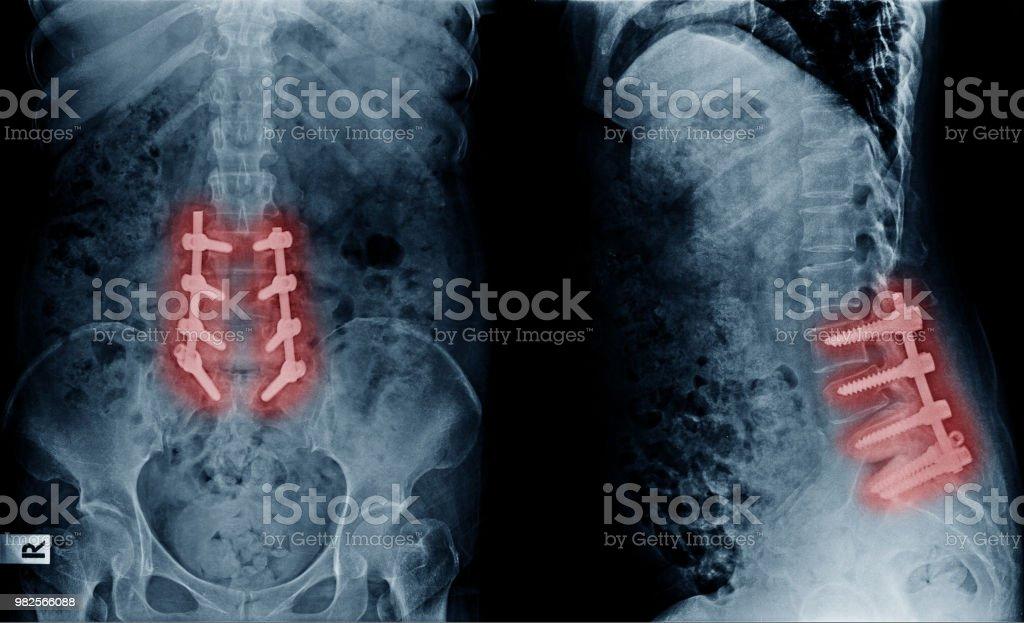 減圧による腰椎椎間板変性症、腰椎術後治療のイメージを x 線し、鉄の棒とネジを修正 ストックフォト