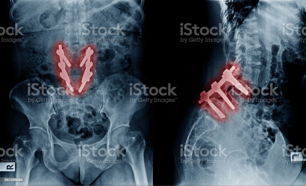 X-ray image of lumbar spine postoperative treatment for degenerative...