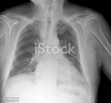 836113342 istock photo X-ray image of lung with pneumonia 1215080369