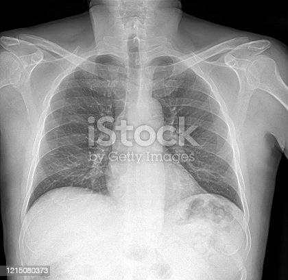 836113342 istock photo X-ray image of lung with pneumonia 1215080373