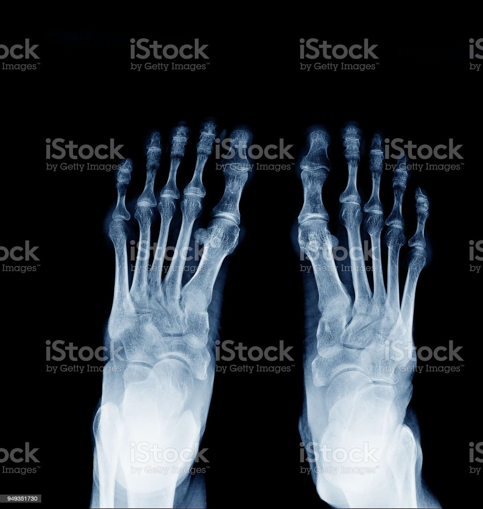 Xray Image Of Normal Foot Both Side Stock Photo & More Pictures of ...