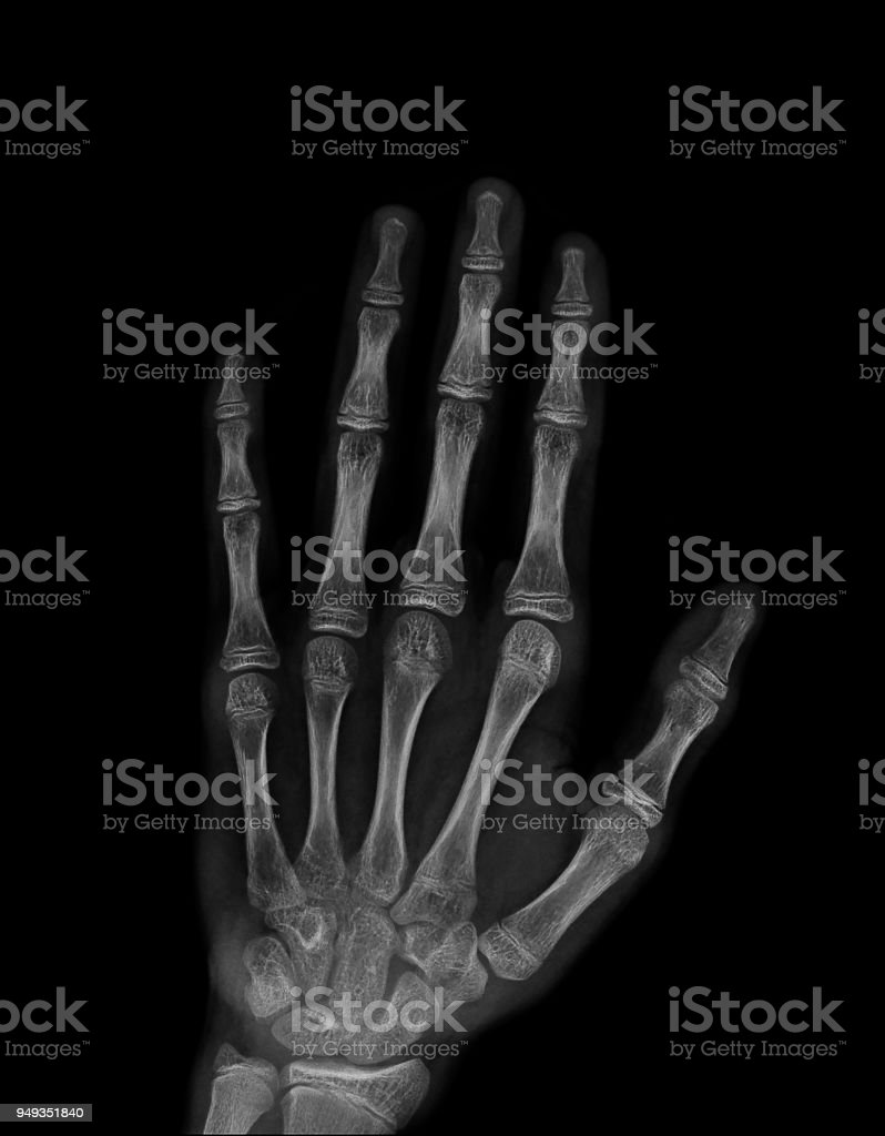Xray Image Of Normal Hand Xray Medical Background Stock Photo More