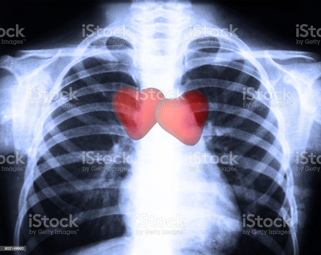 Röntgenbild Des Normalen Menschlichen Brust Mit Roten Menschlichen ...