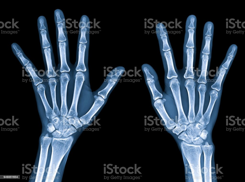 X-ray image of normal women hands isolated on black background with clipping path stock photo