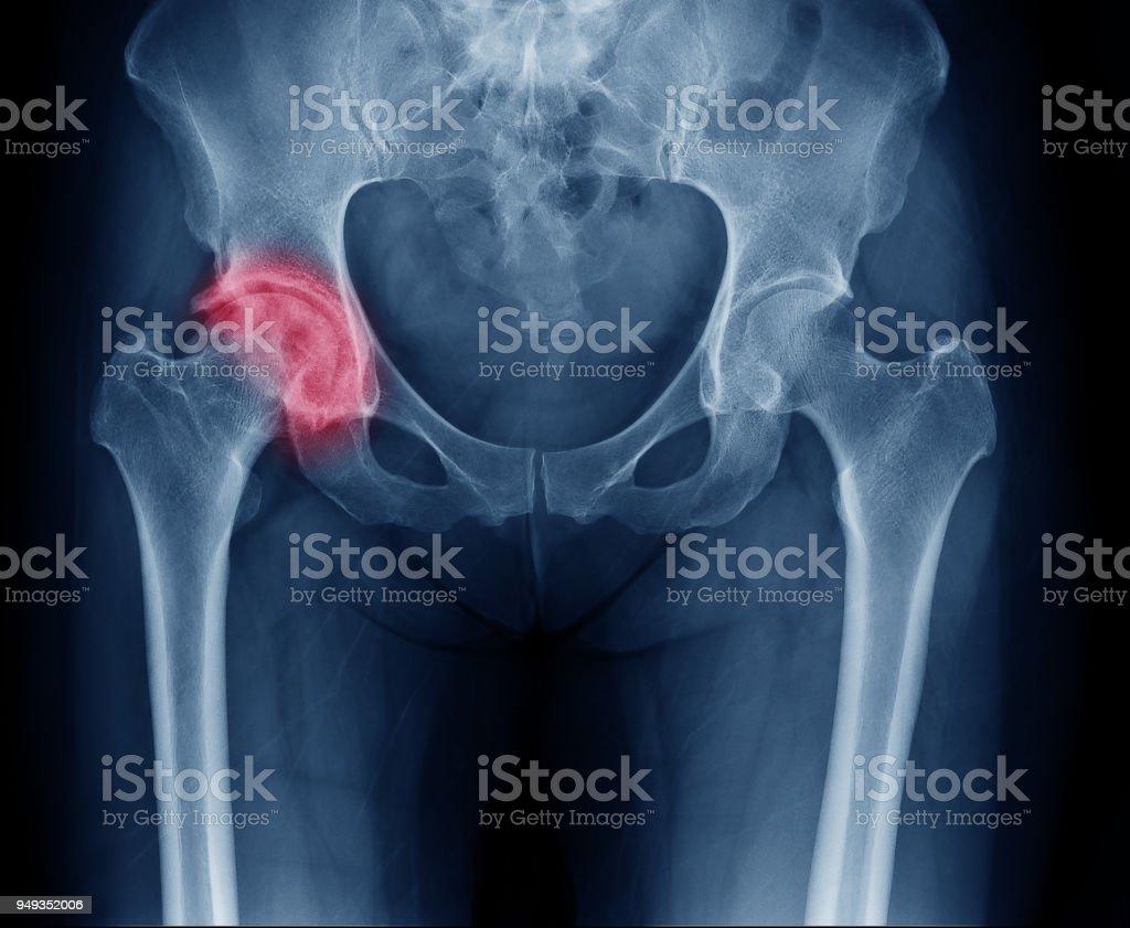 Fotografía de Imagen De Rayos X De Cadera Dolorosa En La Mujer ...