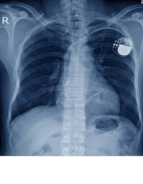 x-ray image of permanent pacemaker implant in chest body , process in blue tone x-ray image of permanent pacemaker implant in chest body , process in blue tone with copy space. pacemaker stock pictures, royalty-free photos & images