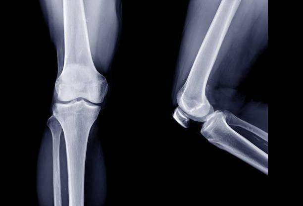Röntgenbild des rechten Kniegelenks AP-Ansicht und Seitenansicht. Knie-Röntgen. – Foto