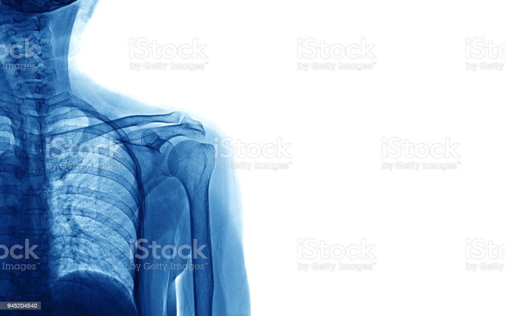 Xray Image Of Shoulder Isolated On White Background Space For Your ...