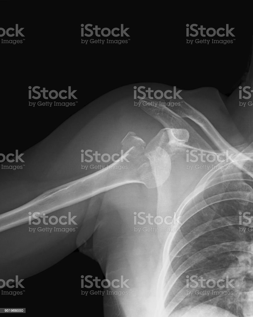 X-ray image of shoulder joint, fron view stock photo