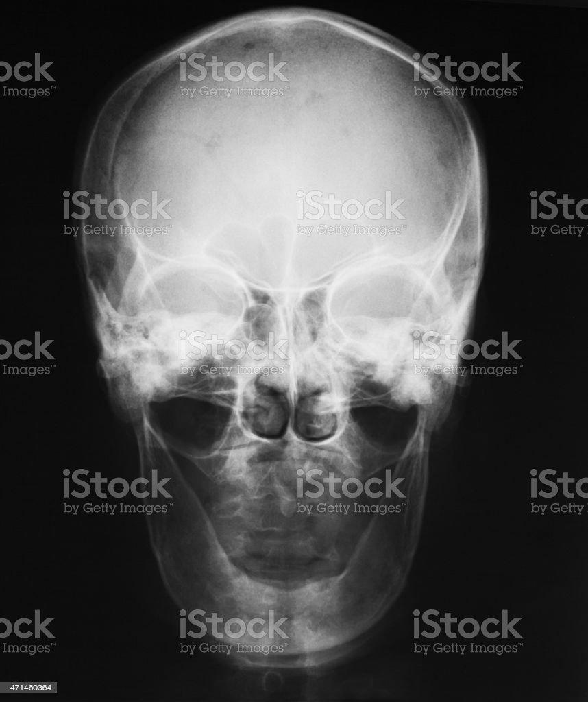X-ray image of skull, a man loss of teeth stock photo