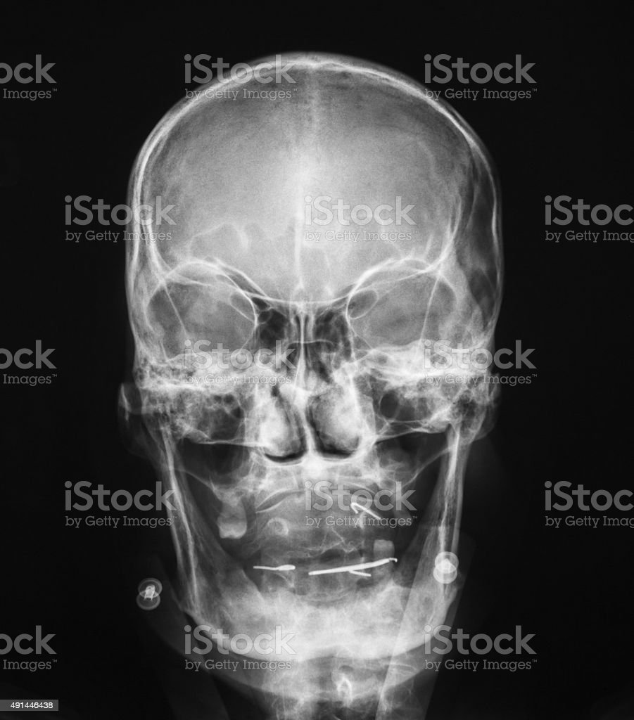X-ray image of skull, accident. stock photo