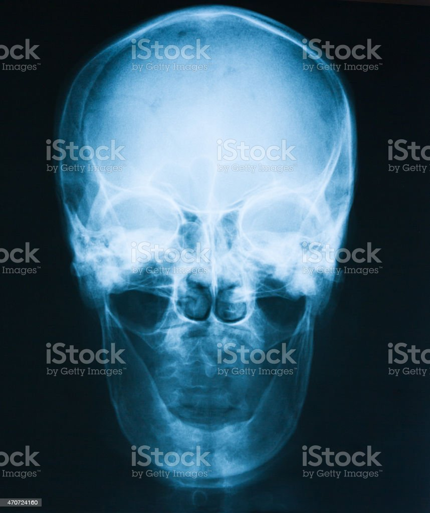 X-ray image of skull, AP view. stock photo