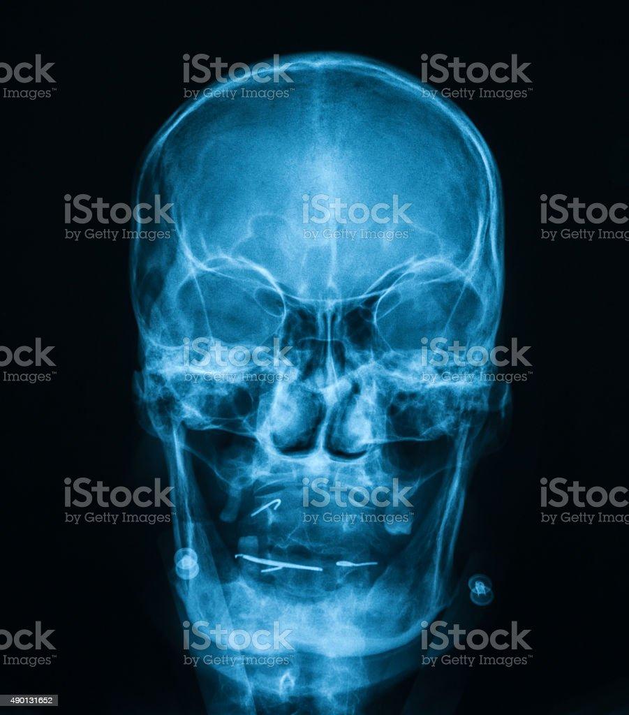 X-ray image of skull ,AP view. stock photo