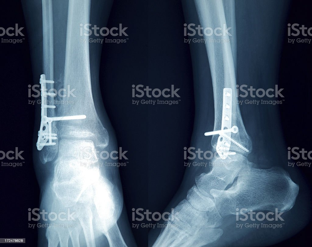 X-Ray image of the Foot stock photo