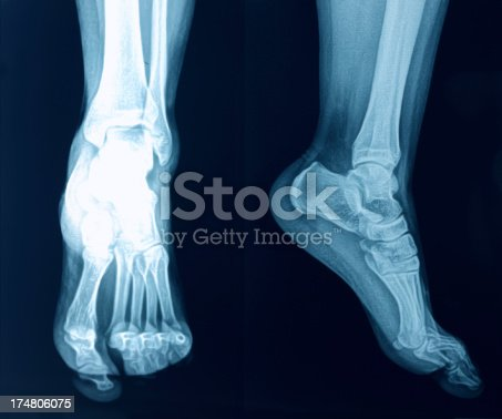 istock X-Ray image of the Foot 174806075